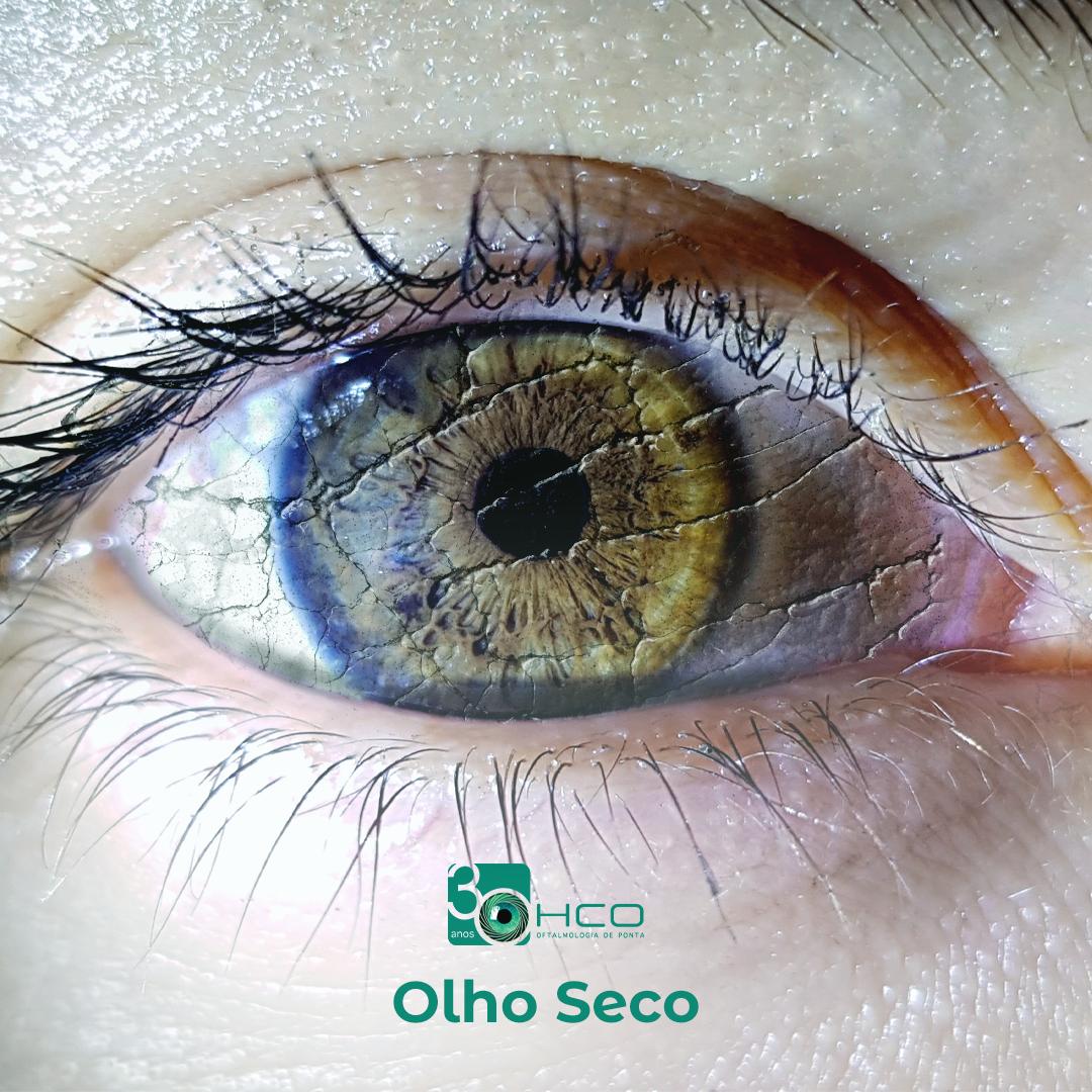 Sindrome do Olho Seco