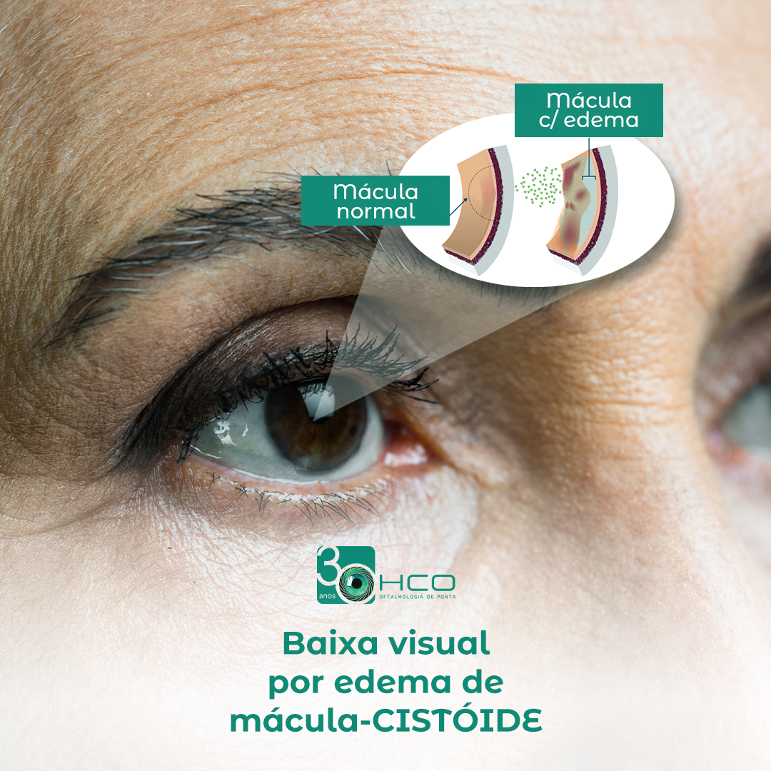 Baixa visual por edema de mácula-cistoide