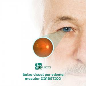 Baixa visual por edema macular diabético