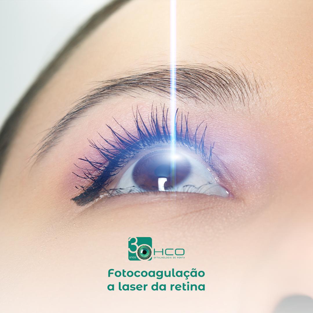 Fotocoagulação à laser da retina