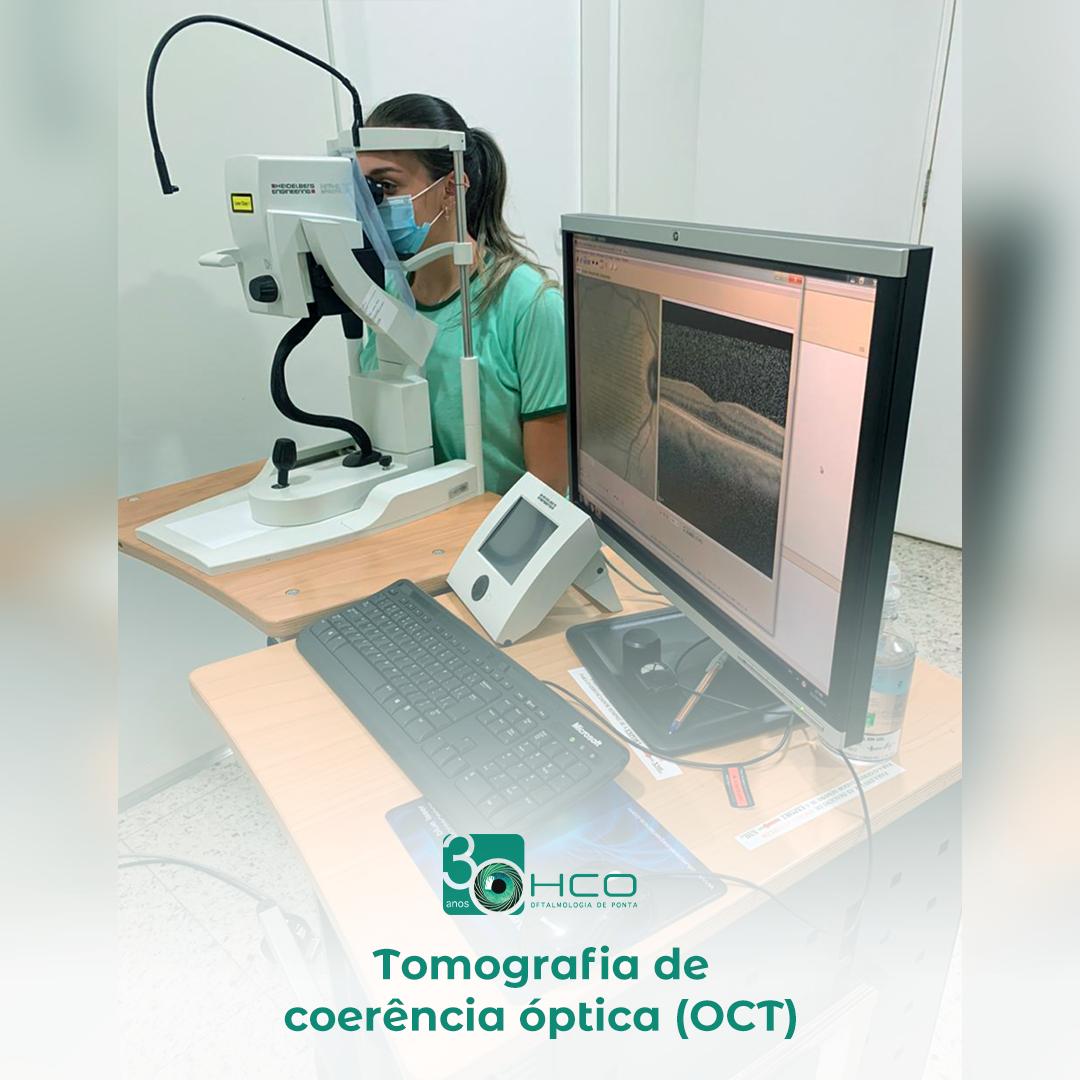 Tomografia de Coerência Optica