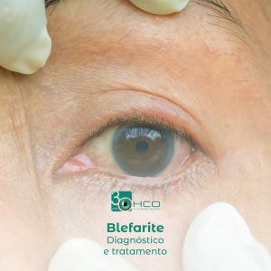 Blefarite - Diagnóstico e tratamento