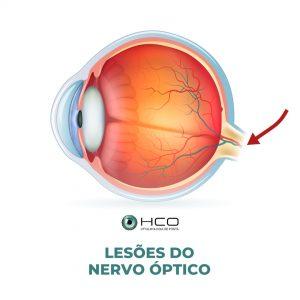 Lesões do nervo óptico