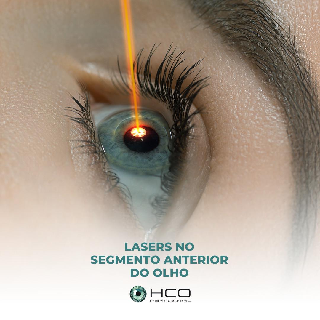 Lasers no segmento anterior do olho