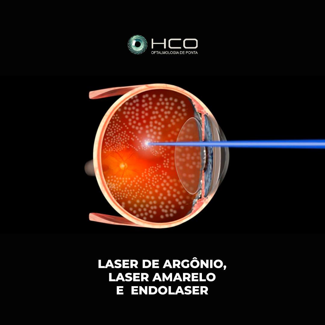 Laser de Argônio