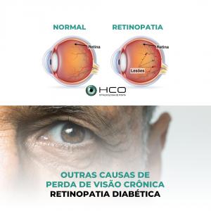 Outras causas de Perda de Visão Crônica - Retinopatia Diabética
