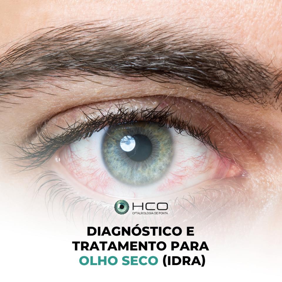 Diagnóstico e tratamento para olho seco (IDRA)