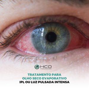 Tratamento para olho seco evaporativo - IPL ou luz pulsada intensa - parte 2